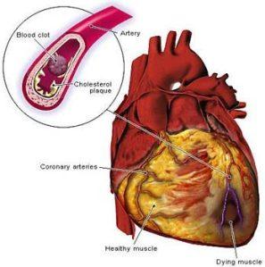 heart_disease-1335